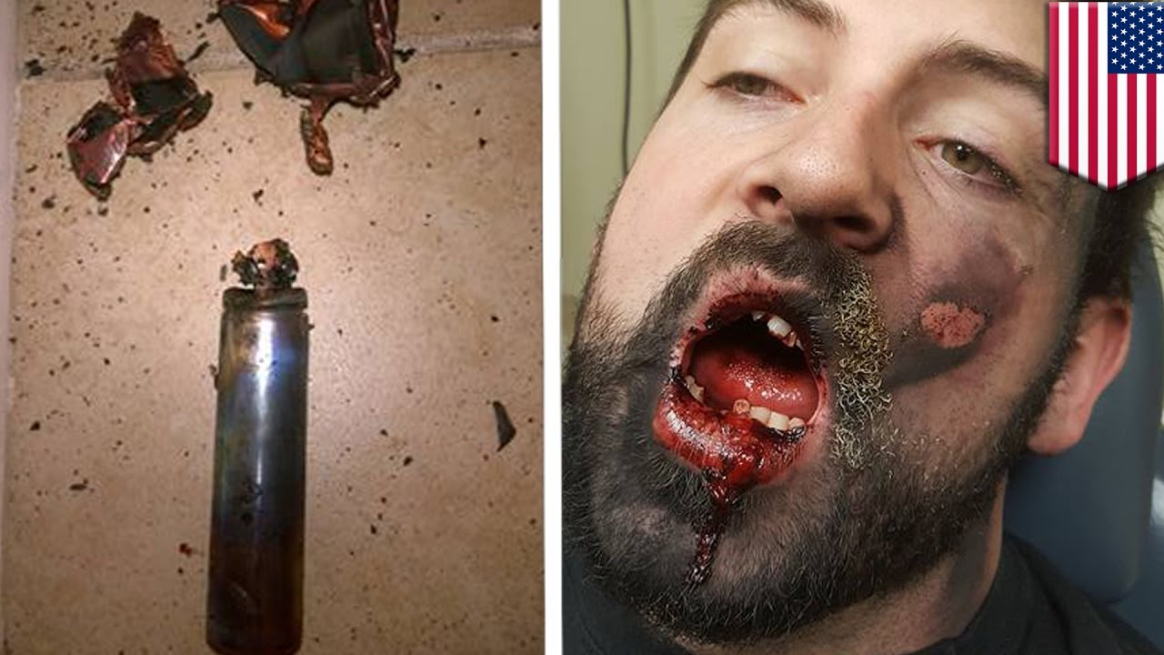 Vape pen explosion: E-cig blows up in Idaho man's face, he loses 7 teeth – TomoNews